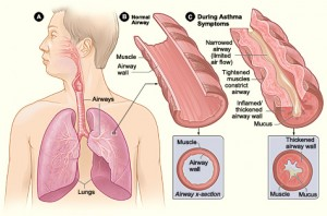 What is it that causes an asthma attack