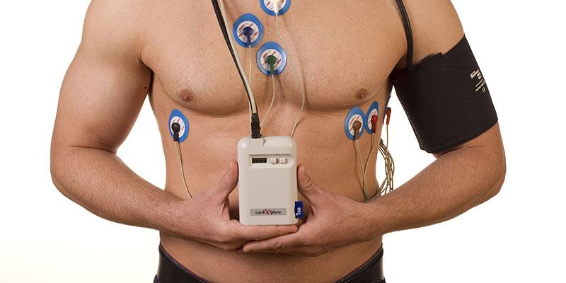 Ce este un monitor Holter?