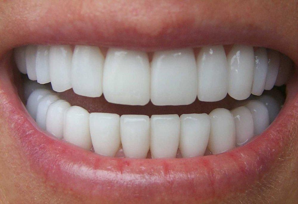 Avantajele si dezavantajele coroanelor dentare